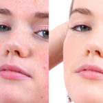 How to Get Rid From Blemishes